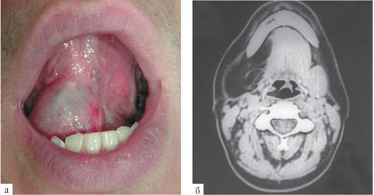 Ранула слюнной железы